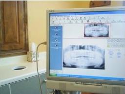 Digital x-ray - radiography screen shot 3